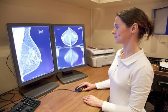 Les teràpies alternatives poden retardar l'inici de la quimioteràpia